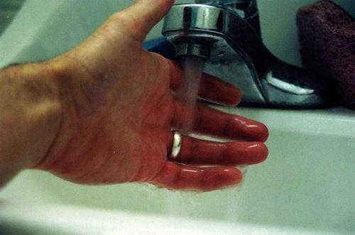 brulure sous le robinet
