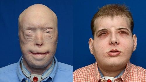 Un pompier de 41 ans a reçu la greffe de visage la plus aboutie de l'histoire