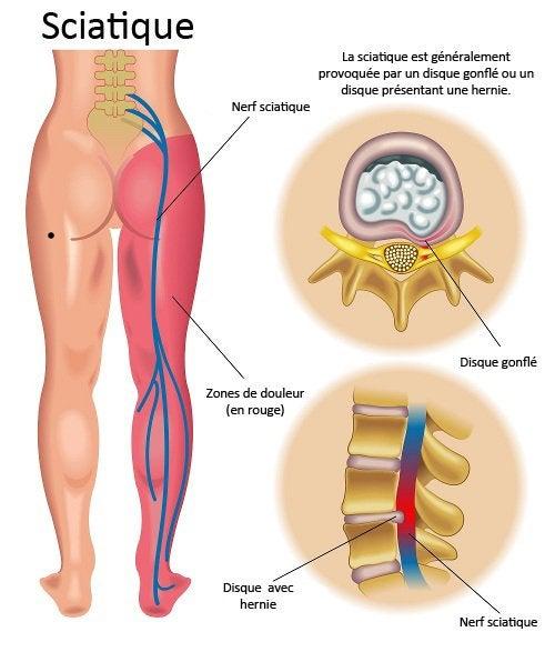 Une sciatique provoque des douleurs dans le bas du dos
