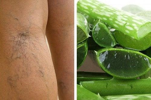 Remède à l'Aloe vera pour soigner les ulcères variqueux