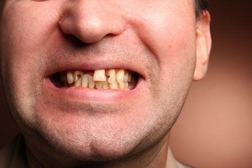 Homme avec des dents manquantes