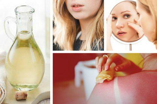 Découvrez 8 utilisations du vinaigre blanc qui vont vous surprendre !