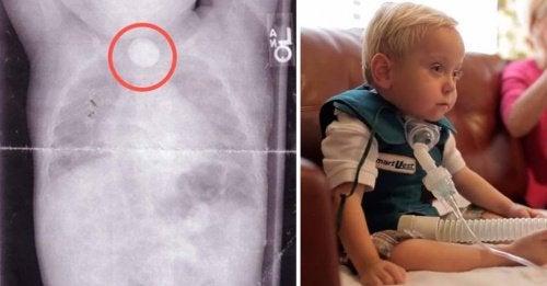 Découvrez l'histoire d'un bébé après avoir avalé une pile bouton