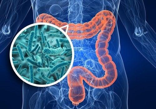 Syndrome de surcharge bactérienne dans l'intestin : symptômes et alimentation