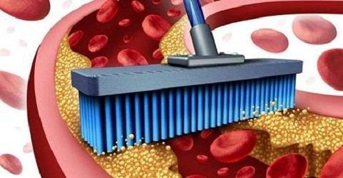 Nettoyer les artères