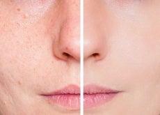 Visage acné