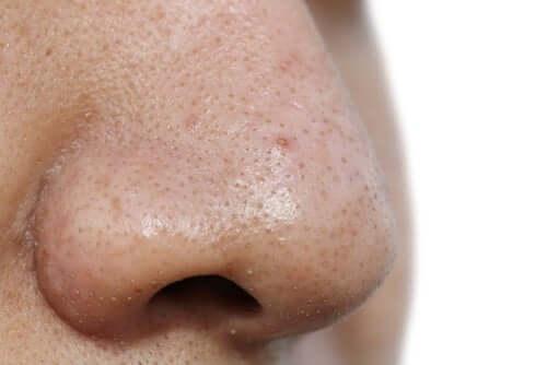 5 masques pour visage contre les points noirs