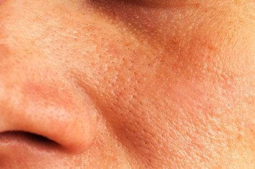 5 solutions naturelles pour réduire les pores dilatés de la peau