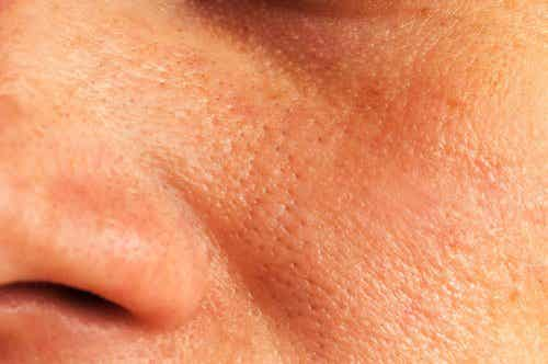 5 solutions pour réduire les pores dilatés de la peau