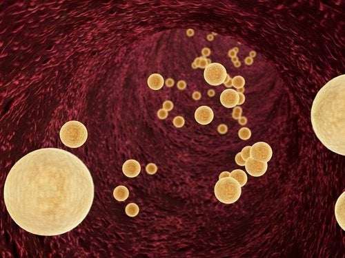 Comment diminuer les triglycérides de manière naturelle ?