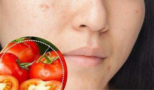 6 ingrédients naturels pour atténuer les taches du visage