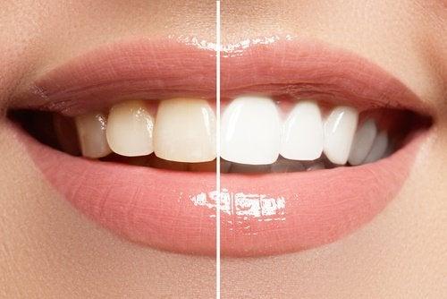 Blanchisseur-dentaire-500x334