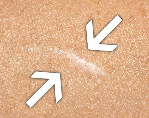Les remèdes naturels pour faire cicatriser les plaies