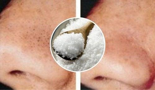 Comment utiliser le sel pour lutter contre les points noirs