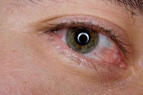 6 remèdes maison pour soulager les yeux fatigués