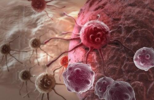 12 variables psychologiques qui influent sur le cancer