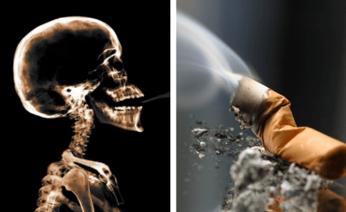 Le-tabac-augmente-les-chances-de-souffrir-d-une-maladie-degenerative-500x307