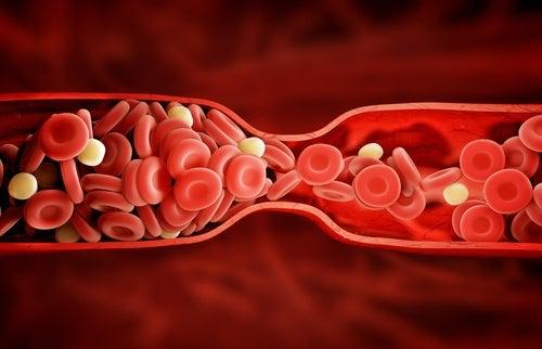 Atorvastatine-medicament-pour -le-cholesterol-500x322