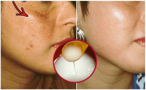 Comment préparer une crème naturelle pour blanchir la peau en peu de temps