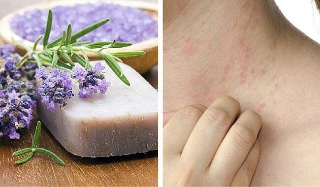 Savon maison idéal pour les peaux délicates et la dermatite