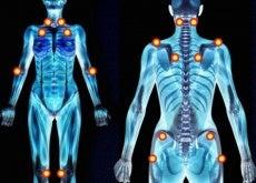 Points-de-douleur-fibromyalgie-500x340