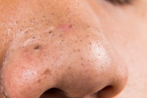 El acné y disbakterioz del intestino
