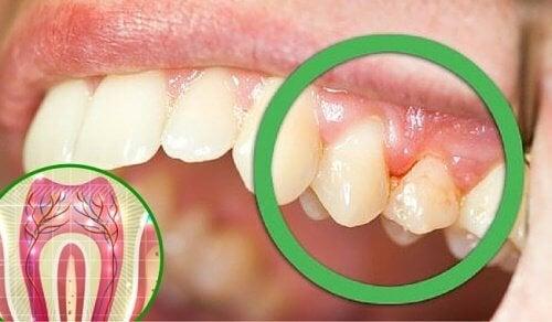 6 raisons pour lesquelles vos dents vous font mal