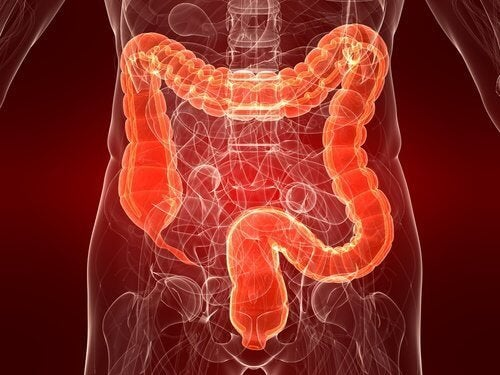 Rectocolite hémorragique : une maladie encore méconnue