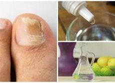 Fabriquez-votre-propre-produit-anti-fongique-naturel-pour-les-ongles