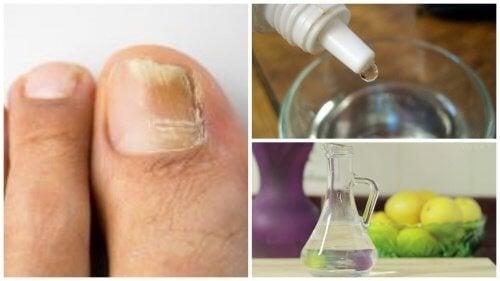 Traitement naturel contre les champignons des ongles