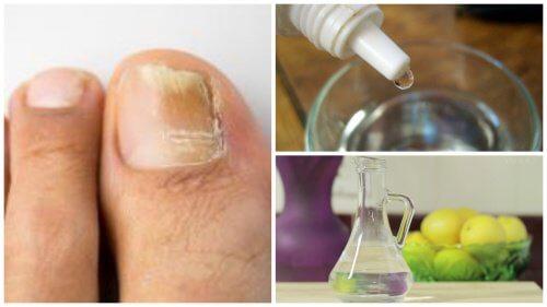 Fabriquez votre propre produit antifongique naturel pour les ongles