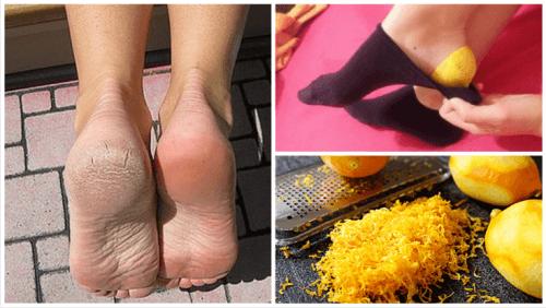 Bienfaits de l'écorce de citron sur vos pieds avant d'aller vous coucher