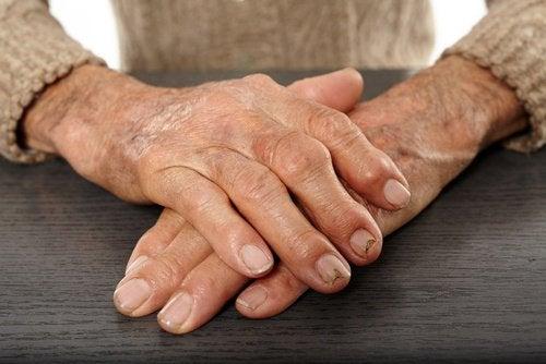 arthrite rhumatismes