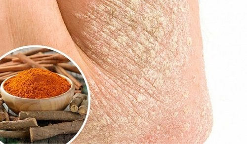 Atopitchesky la dermatite krasnogorske