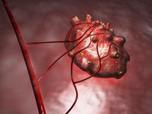 Les kystes sont des petites grosseurs remplies de liquide qui se forment dans les ovaires.