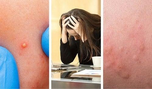 Les éruptions cutanées indiquent que le stress nous affecte trop