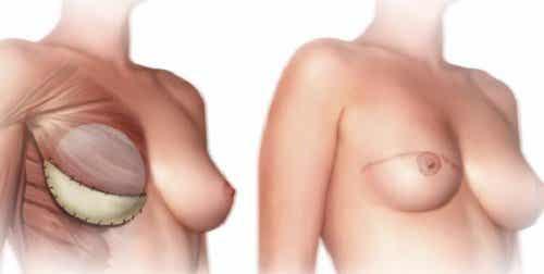Que savoir avant de faire une mastectomie ?