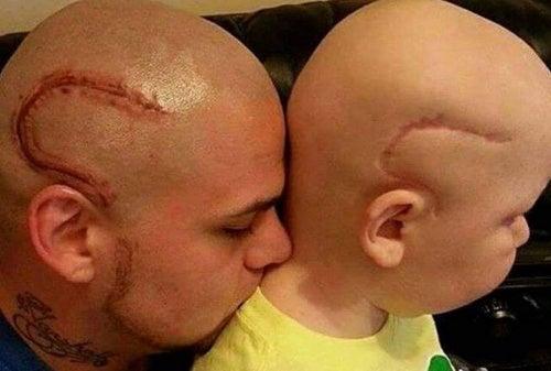 Un père se tatoue la cicatrice de son fils, opéré d'un cancer