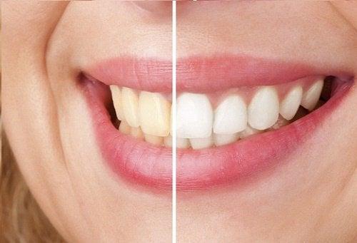 Sourire dents blanches et jaunes