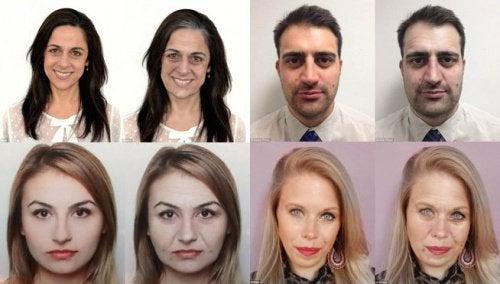 10 effets négatifs du stress sur votre apparence