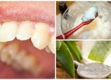 eliminez-votre-plaque-dentaire-avec-ces-remedes-naturels