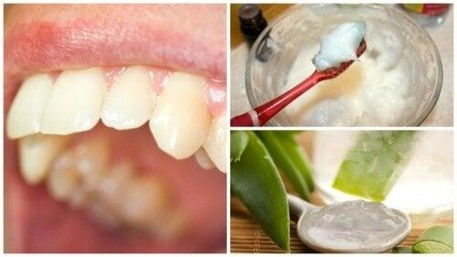 Remèdes naturels pour éliminer la plaque dentaire