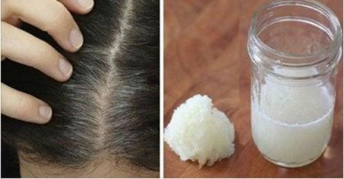 Miel et pousse de cheveux