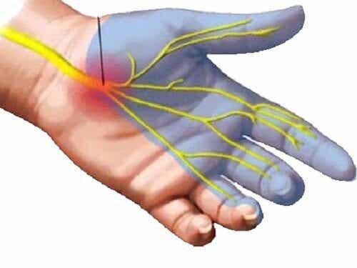 7 remèdes pour réduire la douleur du canal carpien