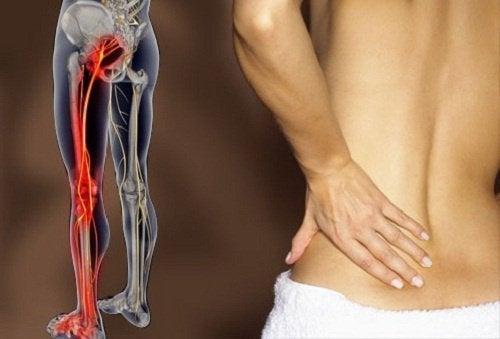 Comment soulager les douleurs du nerf sciatique avec des exercices