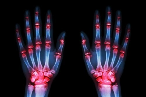 """Une étude récente affirme que d'ici 5 à 10 ans, un traitement permettra de """"freiner"""" l'arthrose"""
