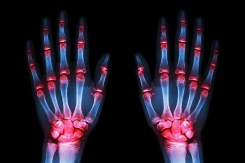 Une étude récente affirme que d'ici 5 à 10 ans, un traitement permettra de «freiner» l'arthrose