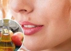 comment-eliminer-les-grains-de-beaute-de-maniere-naturelle-500x292