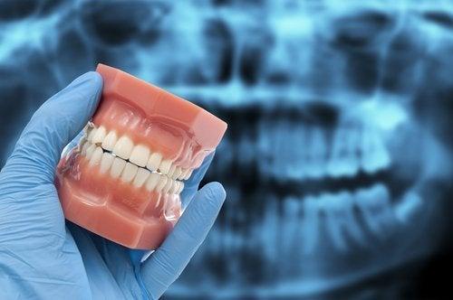 dents-500x332