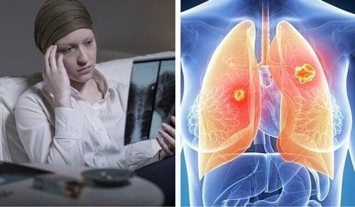 Le cancer du poumon est beaucoup plus mortel chez les femmes